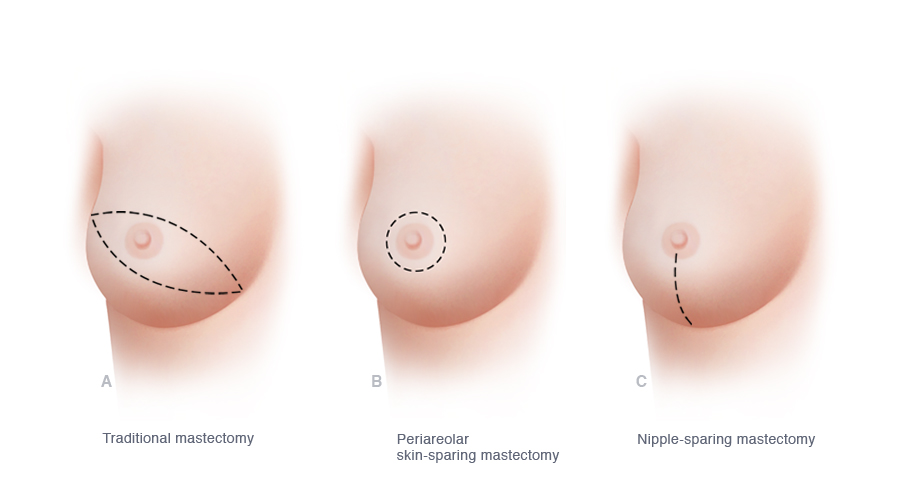 Nipple Sparing Mastectomy The Plastic Reconstructive Surgery Group