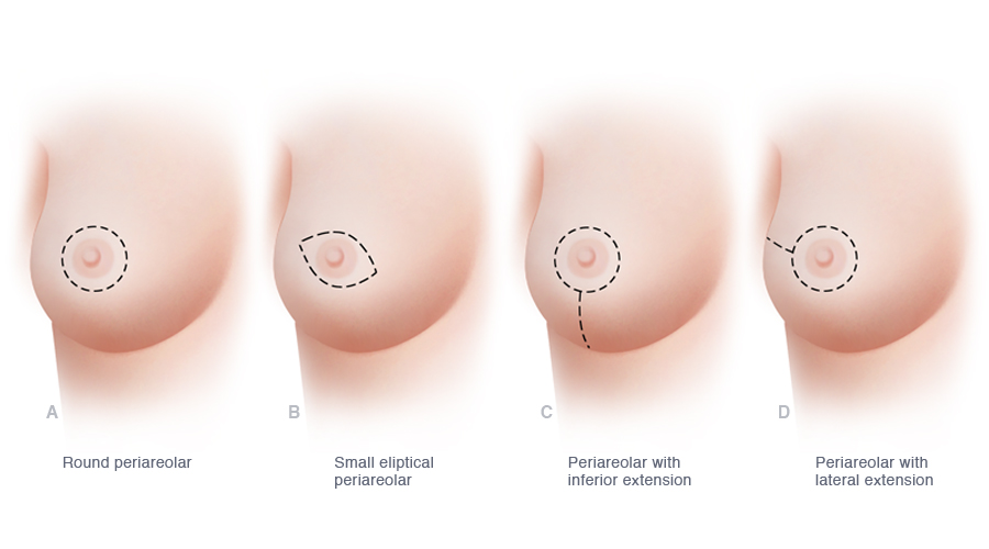 The various possible incisions used when a skin-sparing mastectomy is performed preserve most or all of the skin of the breast but allow for removal of the nipple and areola. Compared to traditional mastectomy, skin-sparing mastectomy, when combined with immediate breast reconstruction, minimizes scarring on the breast and helps optimize the cosmetic results of reconstruction. Several of the more commonly used incisions for skin-sparing mastectomy are illustrated.