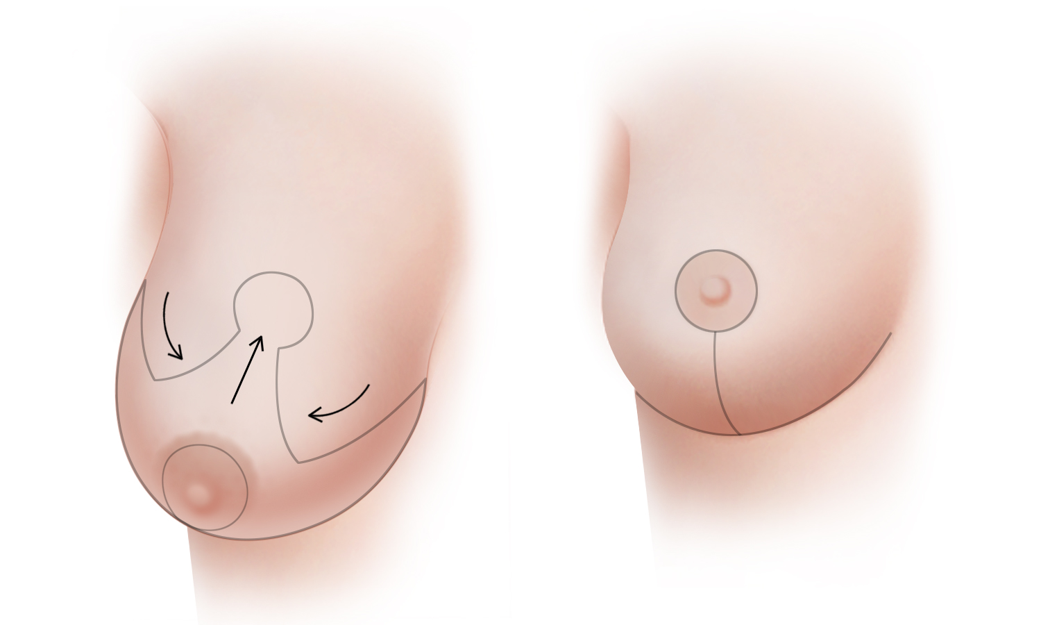 Breast Reduction Type A