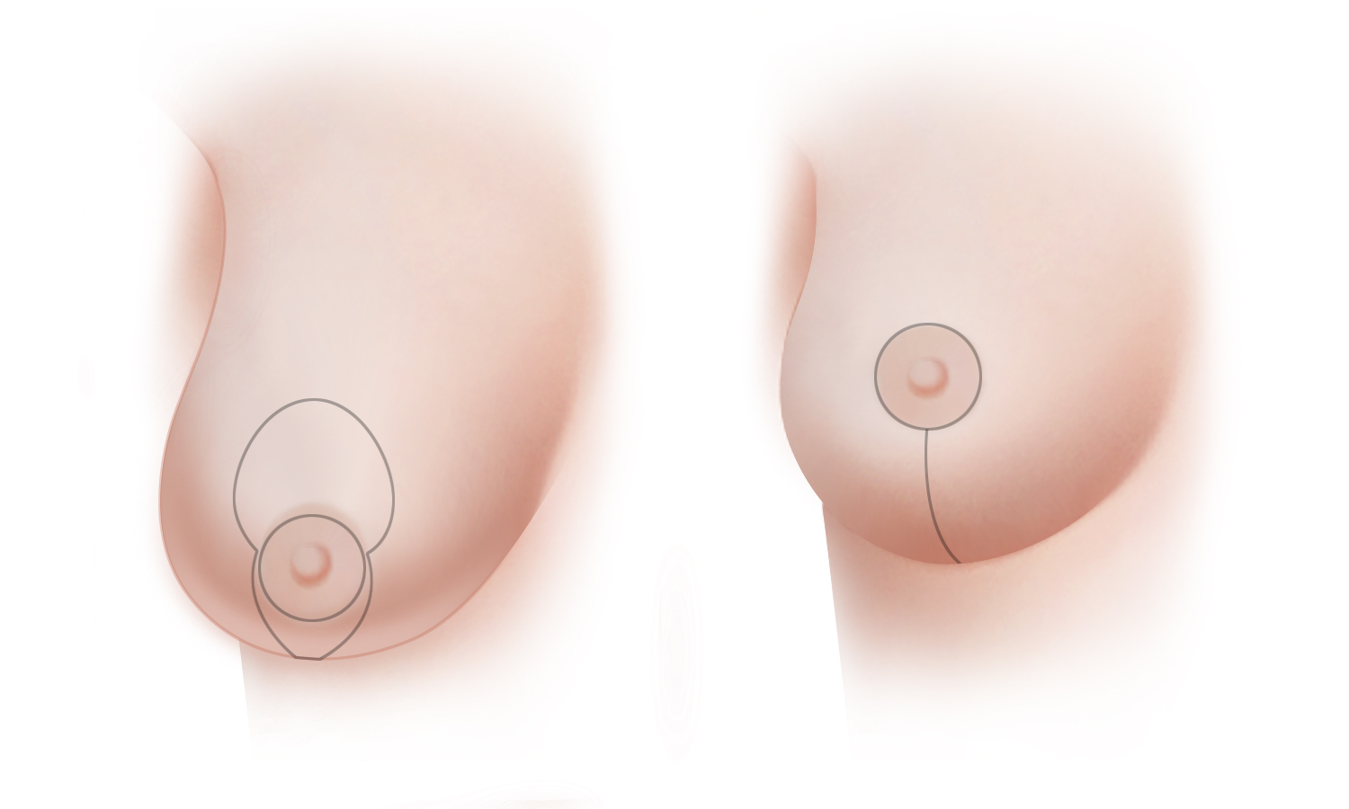 Breast Reduction Type B